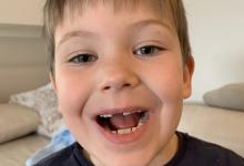 vitjan-izgubil-zob